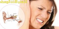 التهاب الأذن الوسطى الحاد