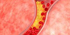 تمدد الأوعية الدموية