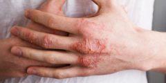 الأكزيما او التهاب الجلد التأتبي